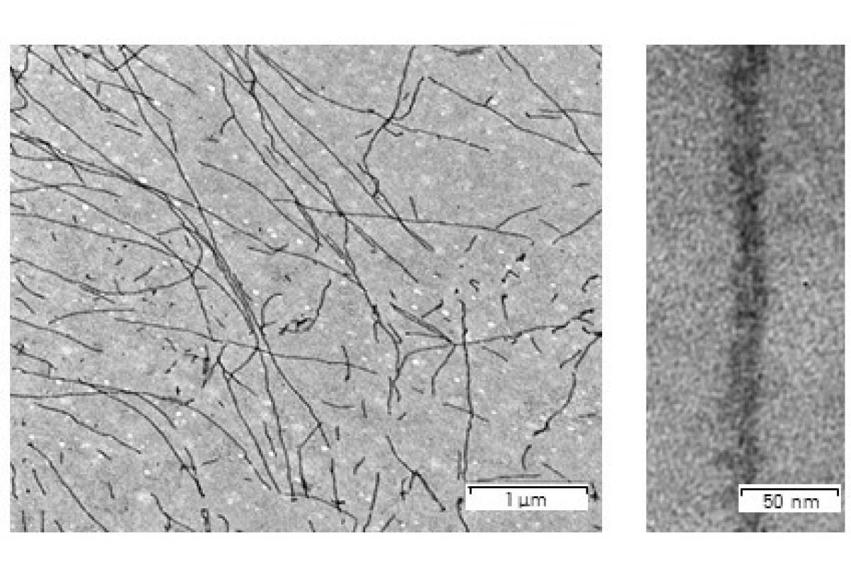 Электронный микрограф фибрилл Sup35NM. Данные получены в ресурсном центре «Развитие молекулярных и клеточных технологий» Научного парка СПбГУ