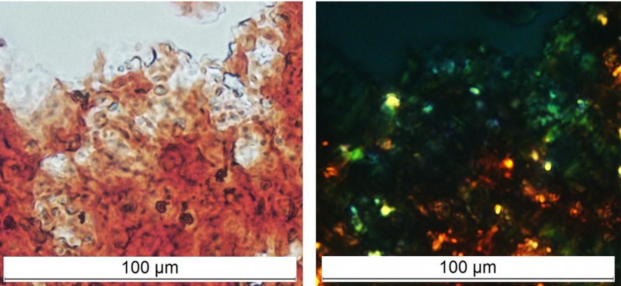 Белок FXR1, выделенный из мозга здоровых крыс, окрашивается амилоидспецифичным красителем «Конго красный» и демонстрирует яблочно-зеленое свечение в поляризованном свете, что считается «золотым стандартом» при идентификации амилоидов
