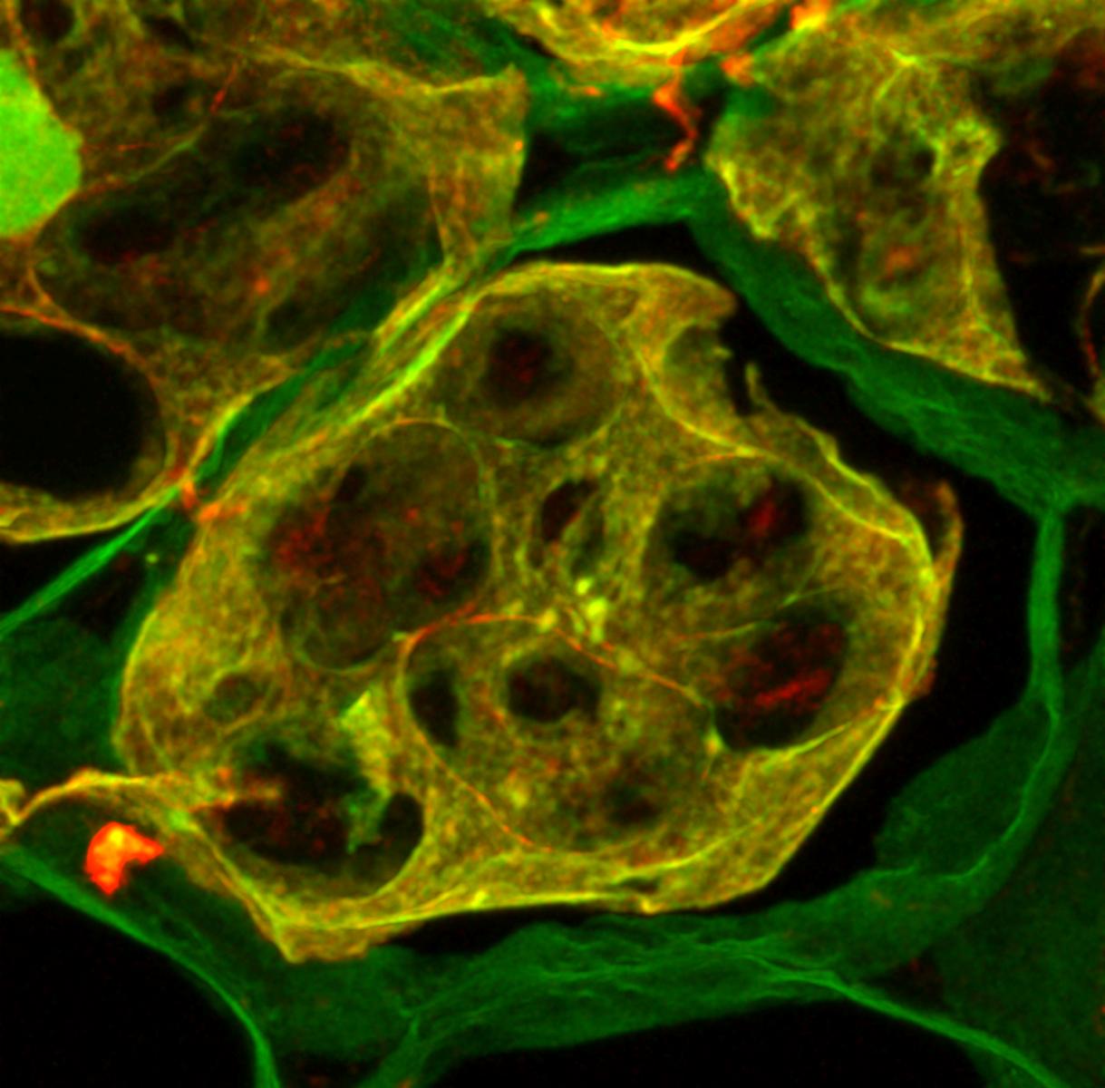 Колокализация сигнала антител против вицилина (красный) с амилоид-специфичным красителем тиофлавином-Т (зеленый) на криосрезах семян гороха. Колокализация показана желтым цветом. Источник: Antonets et al., PLOS Biology, 2020