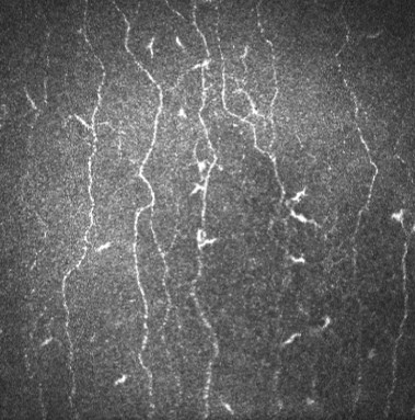 «Пациент с синдромом хронической усталости»: стволов волокон только два, они извитые и имеют очень много разрозненных ветвей, много клеток Лангерганса.
